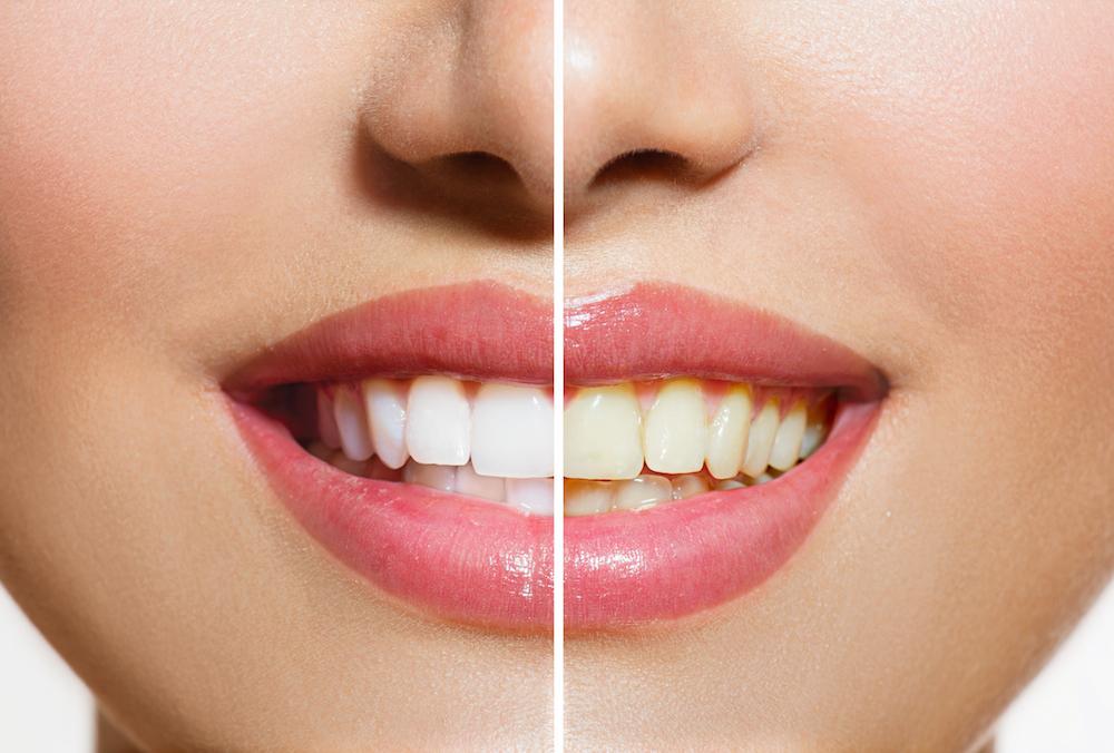 Stained Teeth | Dentist Onawa IA